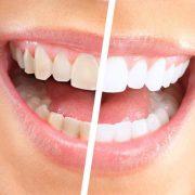 teeth whitener polish
